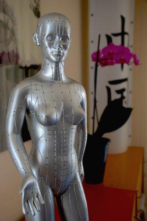 Akupunktur - TCM - Neckargemünd